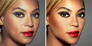 20 Before & After Images Of Celebs Reveal Society's ...