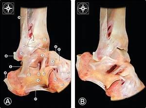 Aspetar Sports Medicine Journal - Ankle sprain: Diagnosis ...  Calcaneofibular