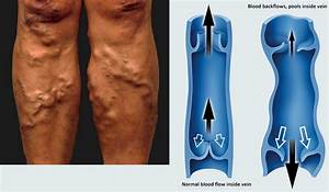 Varicose And Spider Veins  U2013 What Are They And How To Avoid