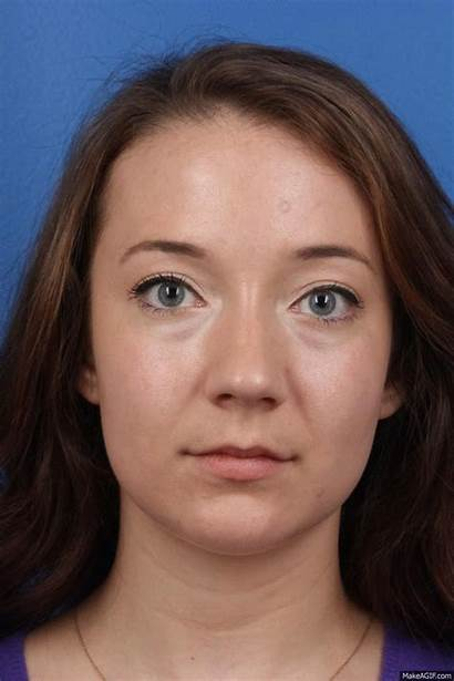 Plastic Business Megan Face Surgery Morphed Surgeon