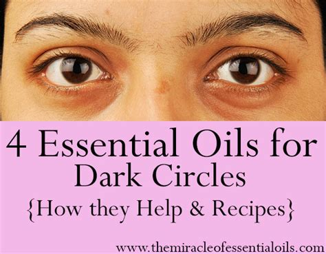 4 Best Essential Oils for Dark Circles - The Miracle of Essential Oils
