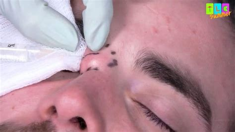 exclusive dr pimple popper circles   anthonys