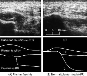 Ultrasound Guided Injection Of Recalcitrant Plantar