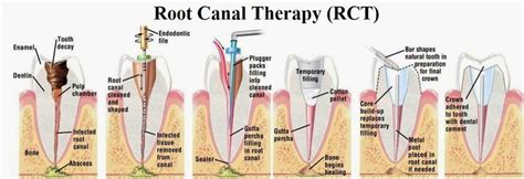 root canal therapy  gramercy park  york cosmetic