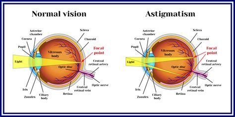 The correction of various refractive errors such as astigmatism, myopia and hyperopia with eyeglasses and contact lenses is greatly reduced after having had lasik performed. An Overview of LASIK Surgery for Astigmatism   NVISION Eye Centers