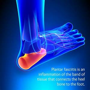 Exercises To Help People Suffering From Plantar Fasciitis