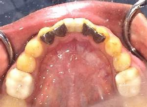 Lingual Surface Of Maryland Bridge After Cementation