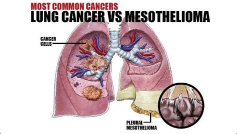 lung cancer  mesothelioma elg law