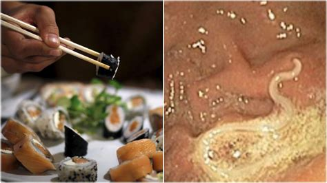love sushi doctors warn  rise  dangerous parasitic