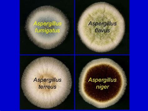 100 wood l examination of tinea versicolor tinea