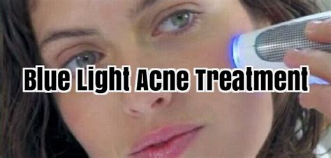 blue light therapy for acne blue light acne treatment light therapy for acne