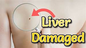 6 Early Symptoms Of Liver Damage You Must Know Alarming