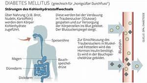 Kalter Fussboden Was Tun : was diabetiker f r ihre f e tun m ssen welt ~ Whattoseeinmadrid.com Haus und Dekorationen