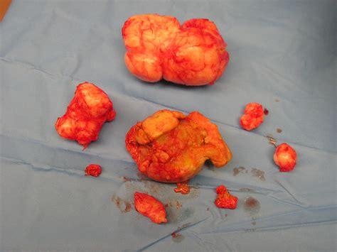 Multi Fibroid Uterus