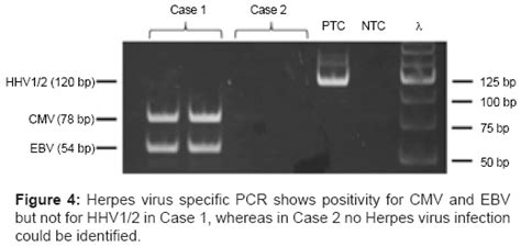 Practical Aspects In The Evaluation Of Infectious