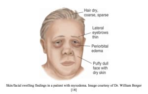 Facial Edema Congestive Heart Failure
