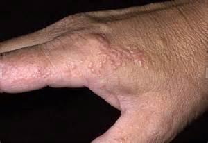 Blister as related to Dyshidrotic eczema - Pictures