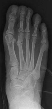 Stress Fracture - Orthopedics - Medbullets Step 2/3