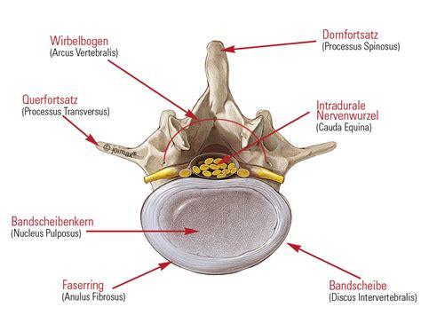Osteochondrose lws
