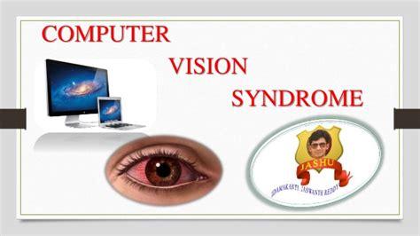 computer vision syndrome cvs  software link
