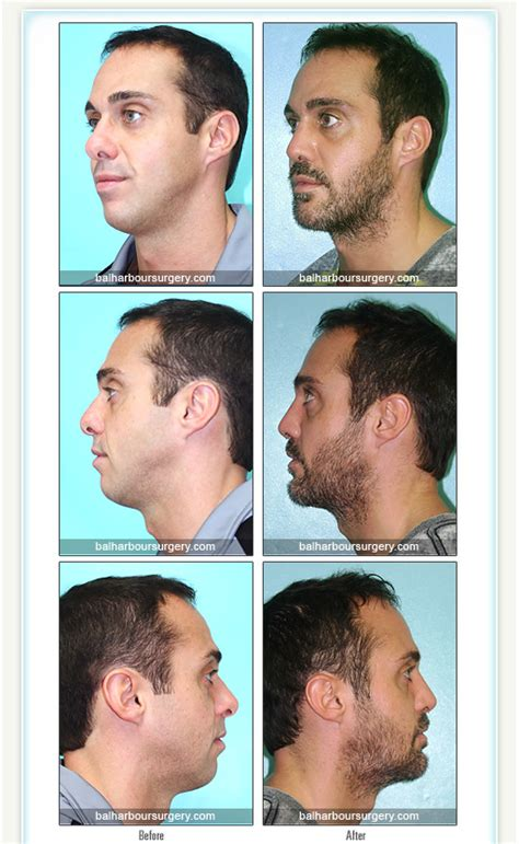 Bal Harbour Plastic Surgery Associates  Before And After. Kitchenaid Microwave Repair Service. Oregon Teacher Certification. Time Warner Cable Rochester Ny Phone Number. Masters Degree In Finance Cook Inlet Pipeline. Illinois Veterans Grant Passages Rehab Center. Difference Between Host And Domain. Granite Outlet Alexandria Heavy Feeling Legs. Pest Control Plymouth Ma Video Website Design