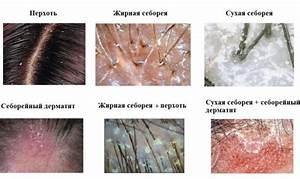 Клиники по лечению псориаза в воронеже