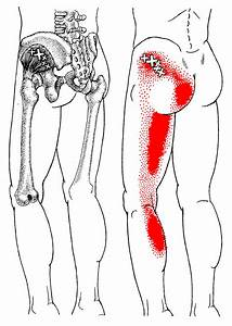 Gluteus Minimus   The Trigger Point & Referred Pain Guide ...