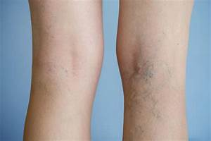 Varicose Vein Risk Factors: Addressing the Myths