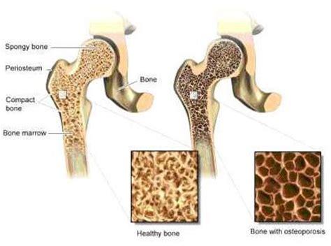 Tulang Gigitan Hip Bone obesity may up the risk of osteoporosis medimoon