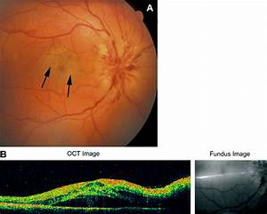 Anterior Ischemic Optic Neuropathy: part 2. A discussion ...