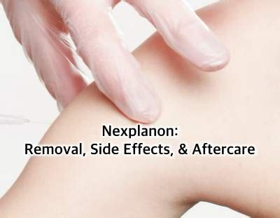 nexplanon removal side effects aftercare embry