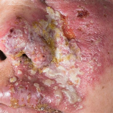 Psoriasis, Eczema: Herbal Treatment for Complete Cure