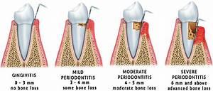 About Gum Disease In San Antonio