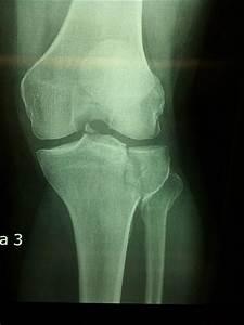 Broken Knee | Flickr - Photo Sharing!