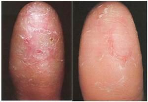 Удаление грибка на пальцах рук