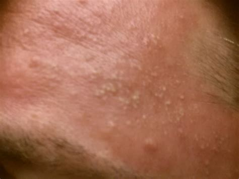 Small Raised Bumps On Forehead Pictures Photos