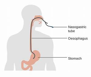 Fitxer Diagram Showing The Position Of A Nasogastric Tube