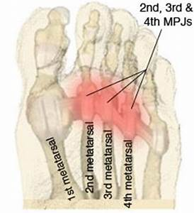 14 best metatarsalgia images on Pinterest | Foot pain, Leg ...