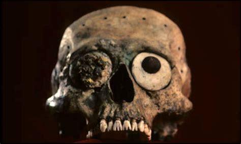 earliest  dental appliances
