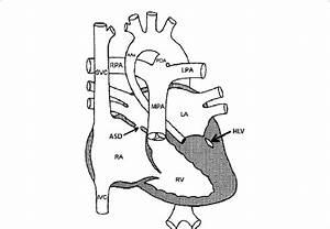 Diagrammatic Illustration Of Hypoplastic Left Heart