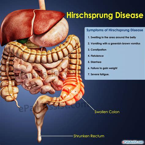 Hirschsprungs Diseasetreatmenthome Remedieschilds
