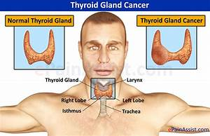 Thyroid Gland Cancer|Causes|Symptoms|Treatment-Surgery ...