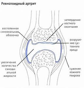 Санатории по лечению артроза голеностопного сустава