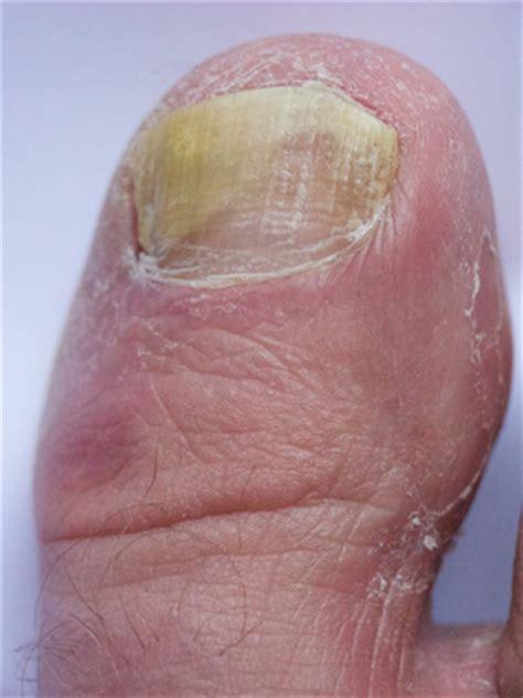 foot care company reflexology chiropody podiatry
