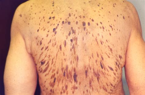 dermatologic manifestations of dermatomyositis party