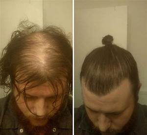Men Are Hiding Baldness With Man Buns But Its Riskier