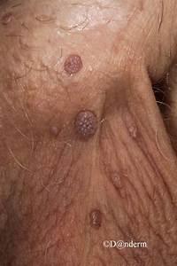 About Anal Genetal Warts