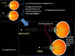 Point Vision Tarif : chirurgie presbytie ~ Medecine-chirurgie-esthetiques.com Avis de Voitures