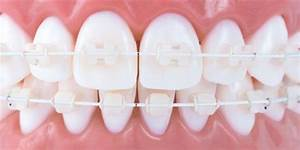 Bracket Estético Digital Ortodoncia