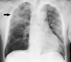 Diagram Pneumonia X Ray